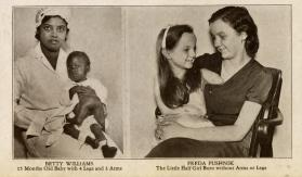 Ripley's Believe It or Not: Betty Williams and Freda Pushnik